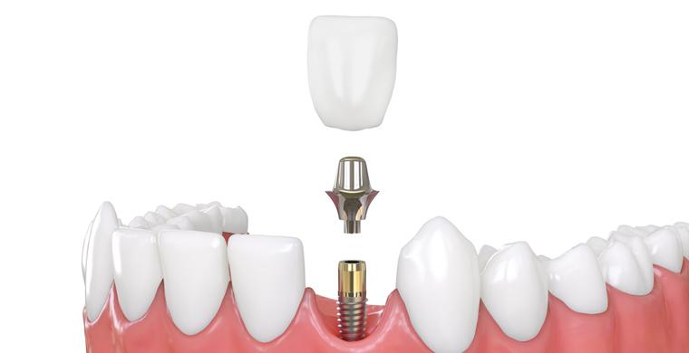 Dental-Implant-Missing-Teeth