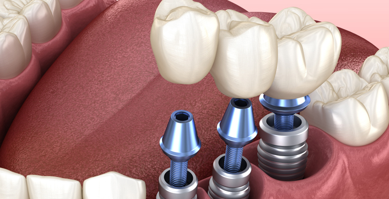 Myths Related To Dental Implants