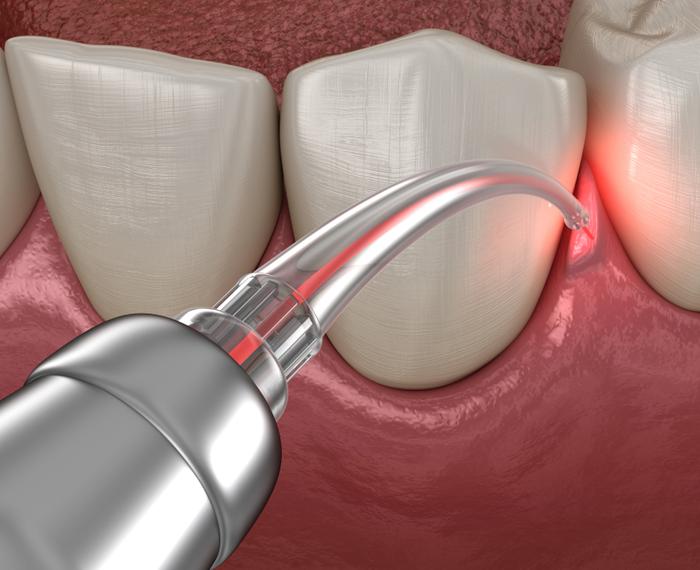 Laser Gum Surgery Ahmedabad