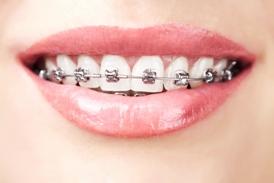 Metal_braces
