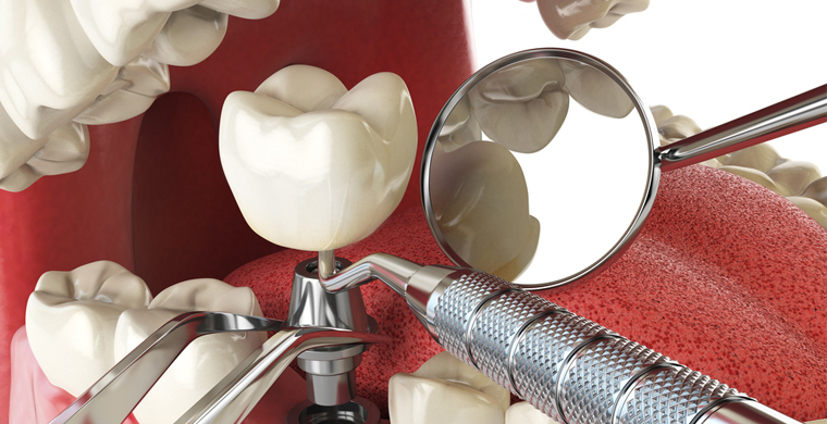 Dental Implants Questions & Answers