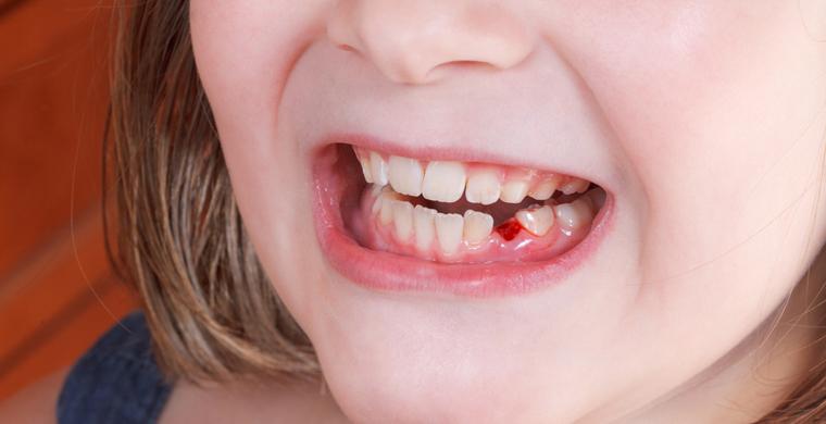 Falling Baby Teeth