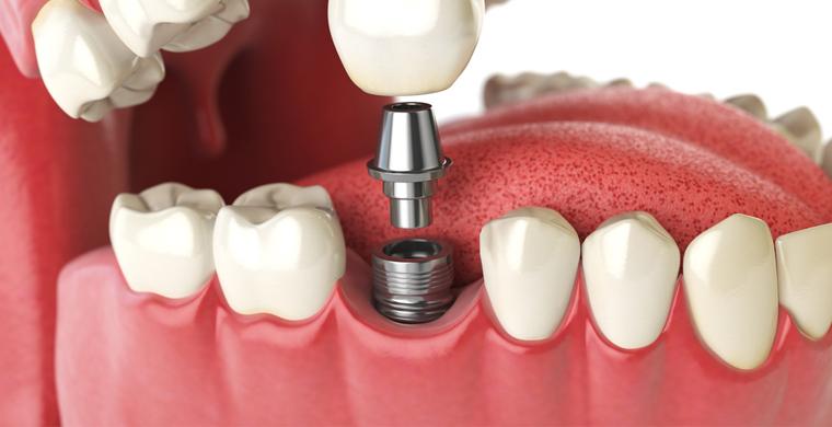 Dental-Implants