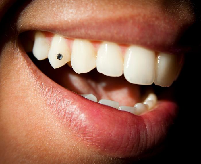 Teeth jewellery treatment ahmedabad
